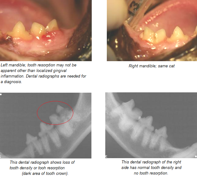 Feline Oral Resorptive Lesion is basically an ulcer, or erosion in the tooth