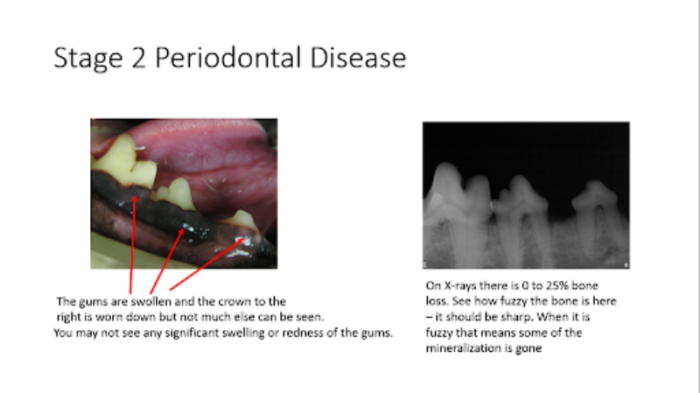 Stage 2 periodontal disease showing swollen gums and 0-25% bone loss