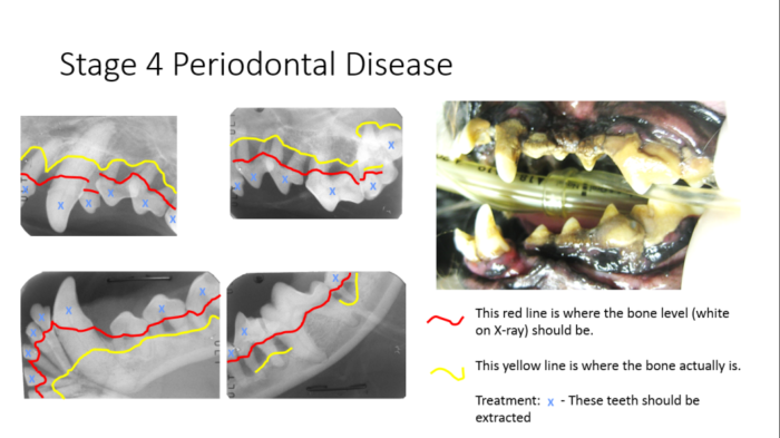 Stage 4 periodontal disease showing significant bone loss and require tooth extraction